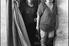 Correct Caption:Sadr City, 2009Rena was 9 months pregnant, walking with her youngest sister one day in 2008. A U.S. aerial strike over Sadr City tore her leg off and killed her unborn infant and sister. Photo by Farah Nosh